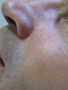 After-erythrosea