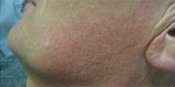 After-erythrosec