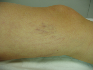 After-varicositesb