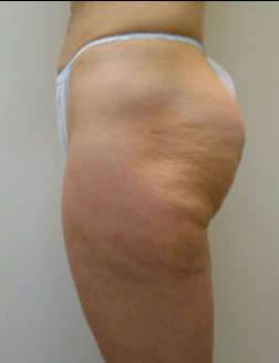 Before-VelaShape